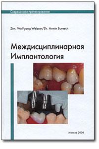 Междисциплинарная имплантология