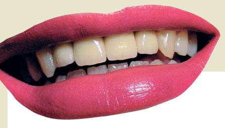 Особенности зубного протезирования при непереносимости пациентом Ni и Cr с применением сплавов на основе золота