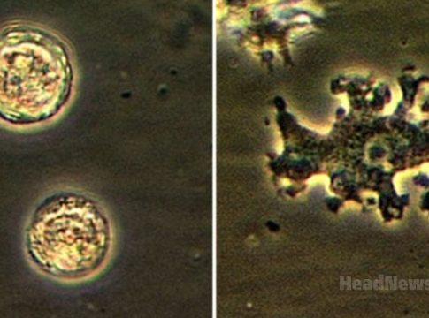 Balamuthia mandrillaris. Медицинские новости, здоровье. МедЭксперт