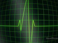 Кардиограмма, сердце. Медицинские новости, здоровье. МедЭксперт