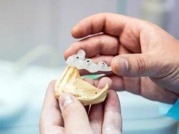 Имплантация зубов, протезирование, стоматология