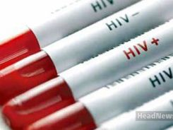 HIV ВИЧ. Медицинские новости, здоровье. МедЭксперт