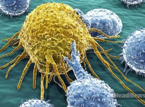 Лимфоциты атакуют раковую клетку. Медицинские новости, здоровье. МедЭксперт