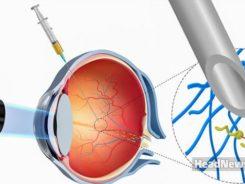Наноботы в глазах. Медицинские новости, здоровье. МедЭксперт